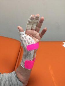 riabilitazione mano